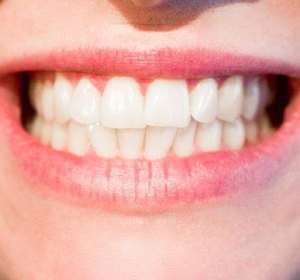 Domowe sposoby na afty w jamie ustnej