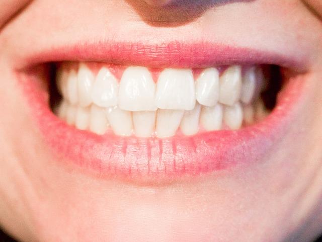 Domowe sposoby na afty w jamie ustnej/języku/wardze/gardle